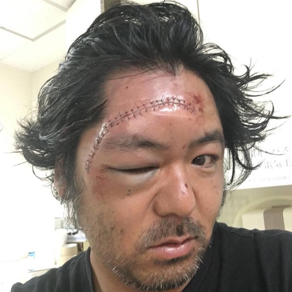 ハイドロフォイルボード事故_Yu Tonbi Sumitomo